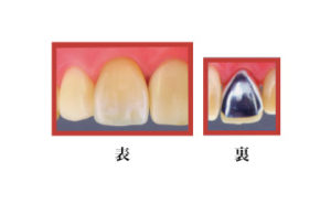 硬質レジン冠(前歯は保険適応)