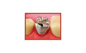 パラジュウムクラウン(銀歯)