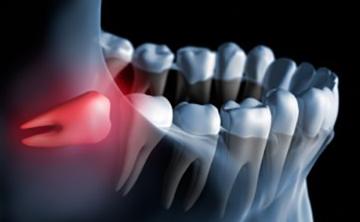 親知らずの周辺の歯ぐきの炎症